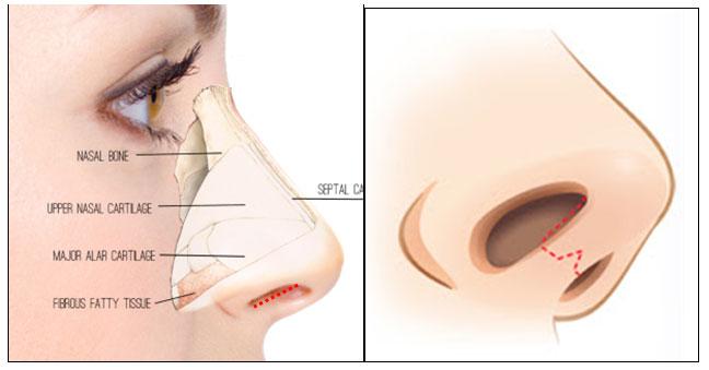 Chỉnh sửa mũi khoằm khắc phục tình trạng mũi khoằm xuống triệt để.