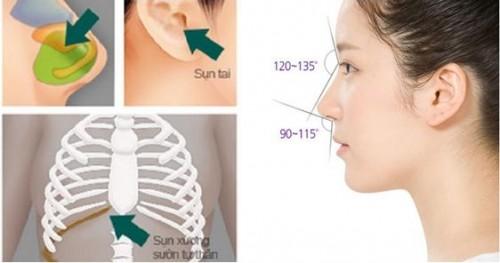 Chất liệu sụn tự thân được dùng trong nâng mũi