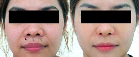 cắt cánh mũi quận 5 tphcm