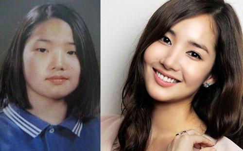 Sự khác nhau trên khuôn mặt của Park Min Young sau phẫu thuật thẩm mỹ