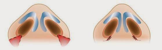 Với công nghệ thu gọn cánh mũi giúp cánh mũi được thon gọn hơn.ao-thon-gon-dep-hon2