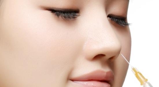 Nâng mũi không phẫu thuật là hình thức tiêm chất làm đầy trực tiếp vào mũi