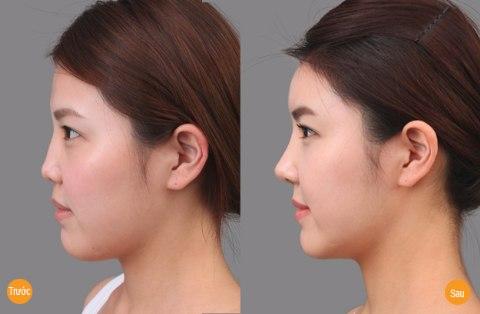 Kết quả nâng mũi không phẫu thuật tại Bệnh viện thẩm mỹ Á ÂU.