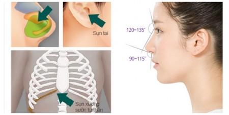 Chất liệu độn bằng sụn tự thân mang đến dáng mũi đẹp tự nhiên hơn