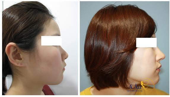 Hình ảnh trước và sau thu nhỏ đầu mũi kèm nâng mũi tại Á Âu.