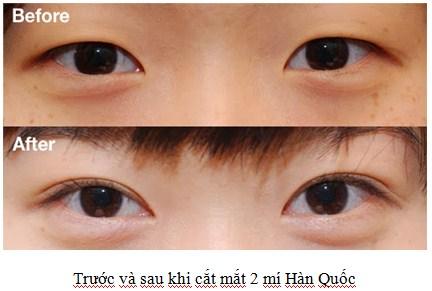 lam-dep-nhu-sao-han-giam-gia-501111111