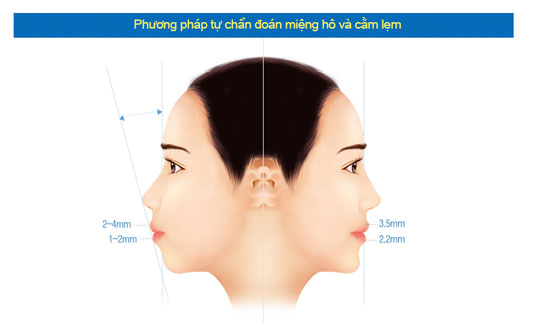 phau-thuat-chinh-ham-ho-mom-an-toan-dep-vinh-vien10