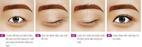 Công nghệ bấm mí Hàn quốc giải pháp tạo mắt 2 mí hiệu quả, an toàn.