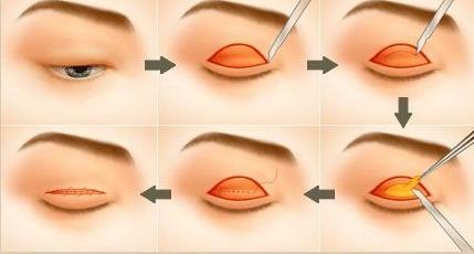 Phẫu thuật cắt mỡ mí mắt - Ảnh mô phỏng