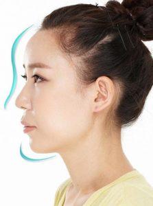 Nâng mũi S-Line 4D là cách hiệu quả nhất hiện nay