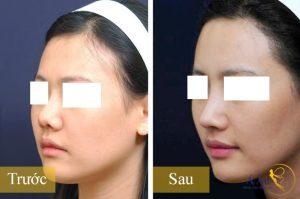 Kết quả sau khi nâng mũi
