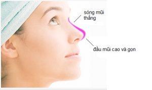 Nâng mũi S-line 4D giúp mũi cao hơn