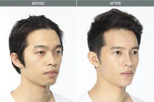Hình ảnh trước và sau khi nâng mũi