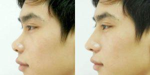 Quy trình nâng mũi cho nam cũng giống nữ