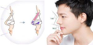 Nâng mũi S-line 4D cho nam