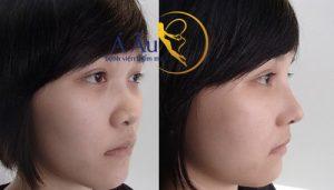 Trước và sau nâng mũi s-line 4D