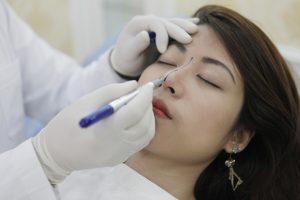 Đo vẽ sống mũi trước khi phẫu thuật