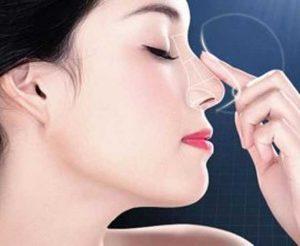 Nâng mũi không có tác hại xấu