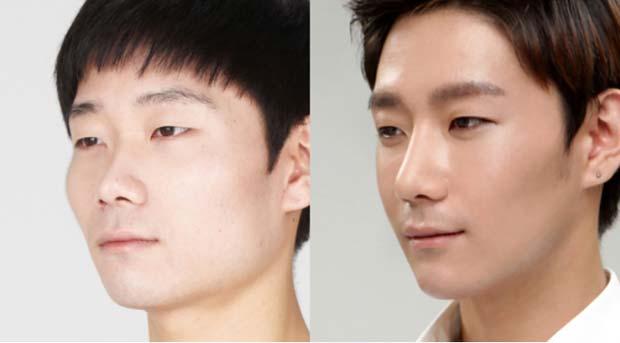 Kết quả trước và sau khi nâng mũi