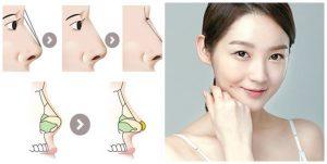 Nâng mũi bằng sụn tự thân kết hợp sụn nhân tạo